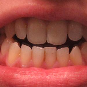 Problèmes de dents