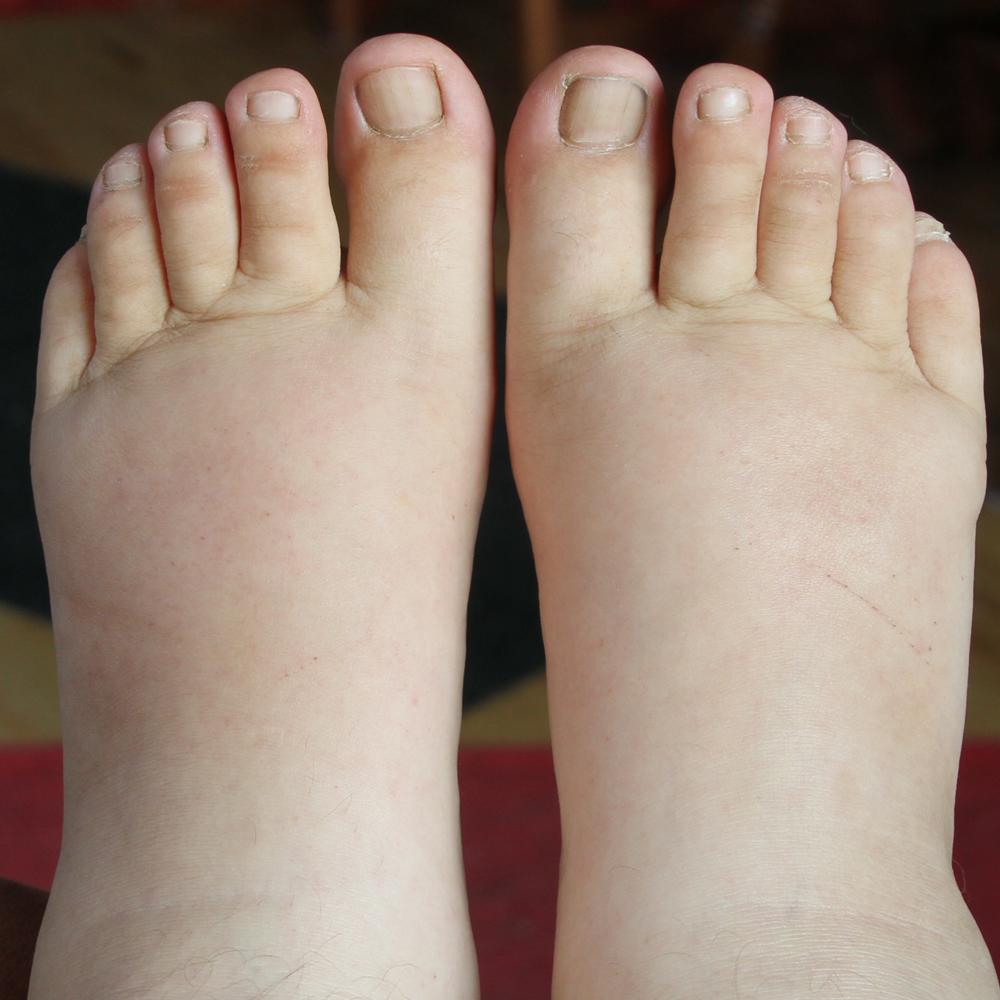 oedemes aux pieds